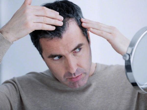 Rụng tóc nhiều có thể là biểu hiện các ông chồng bị yếu sinh lý